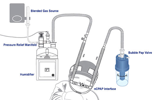 Babi.Plus Bubble nCPAP System diagram
